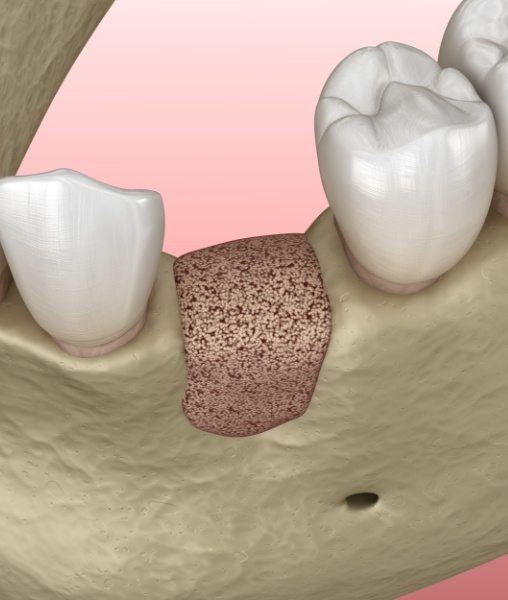 Animated bone graft visible in gum line