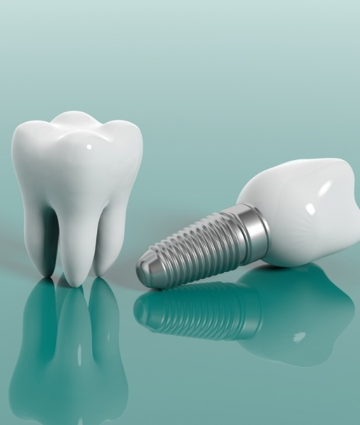 Animated natural tooth and dental implant supported replacement tooth