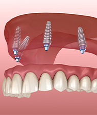 Animated all on 4 dental implant denture placement