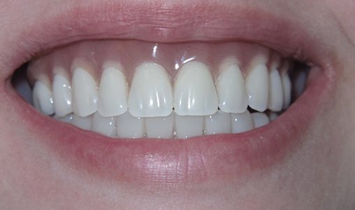 Patient's beautiful smile after Teeth in a Day treatment