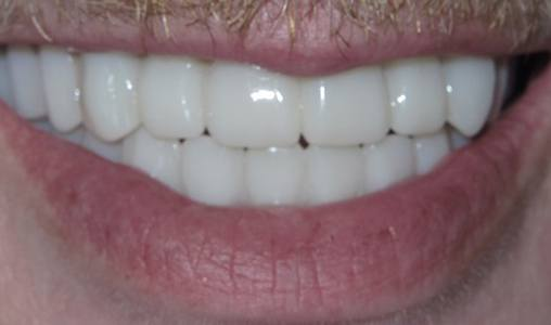 Patient's attractive, healthy smile after All on 4